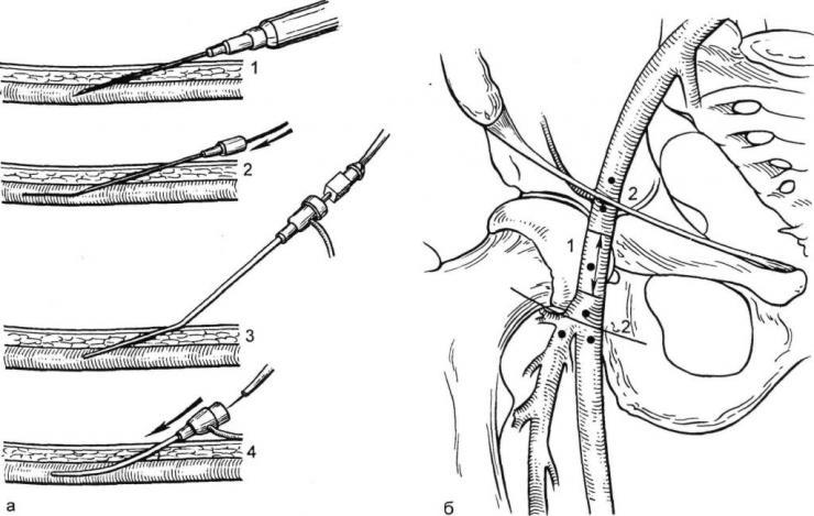 Техники катетеризации бедренной вены