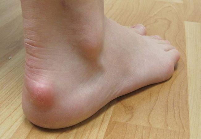 Почему появляются мозоли на ногах и их разновидности