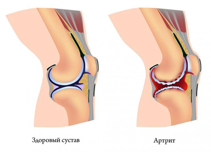 Причины и симптомы воспаления суставов