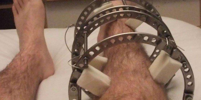 Применение аппарата Илизарова при переломе костей ног