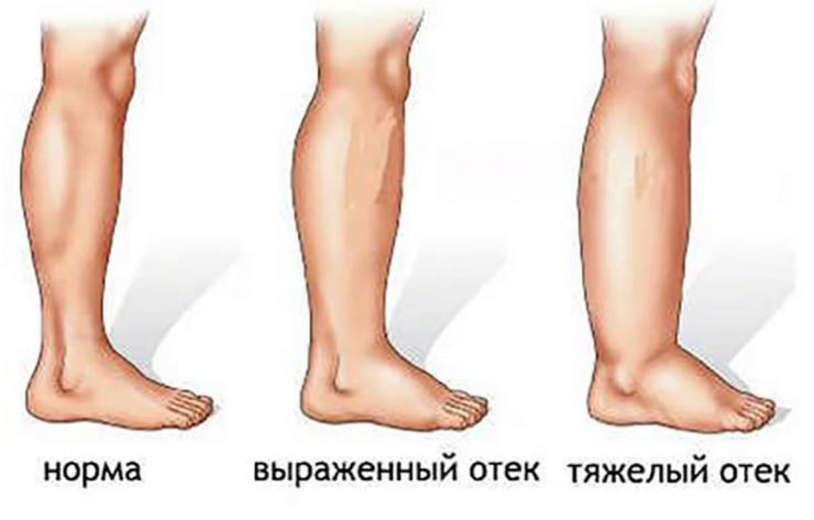Почему отекают ноги после алкоголя?