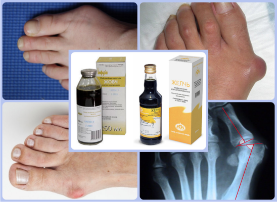 Применение медицинской желчи при косточках на ногах