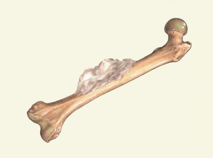 Симптомы, диагностика и лечение эностоза бедренной кости