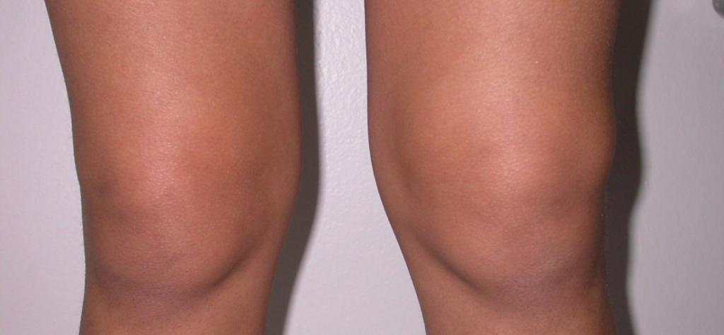 выпот коленного сустава