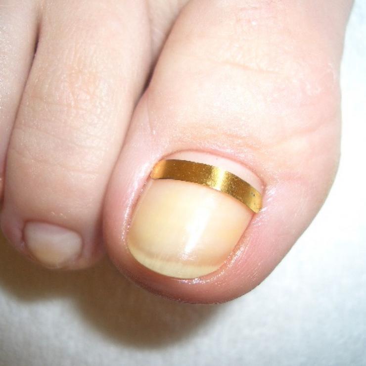 Причины, симптомы и лечение дикого мяса на пальце ноги