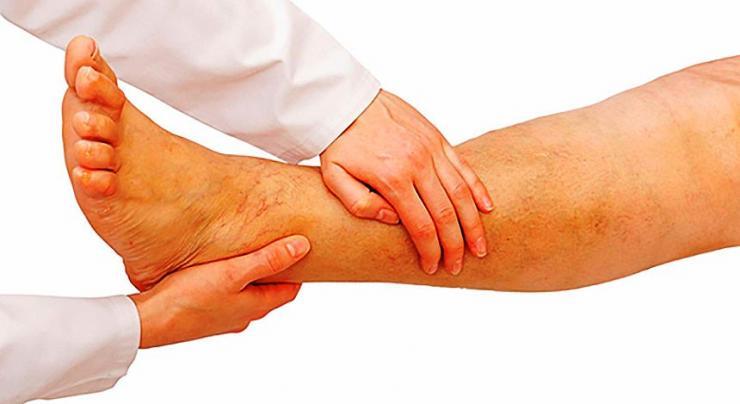 Симптомы и лечение артериопатии нижних конечностей