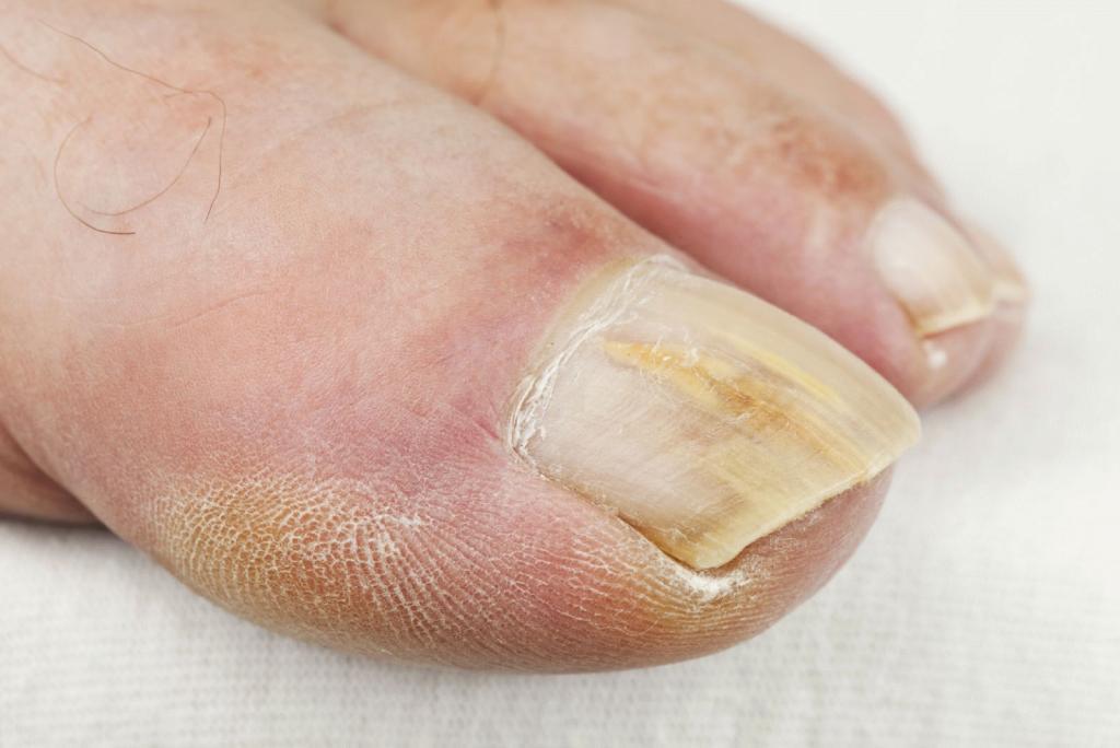 Треснул ноготь на большом пальце ноги