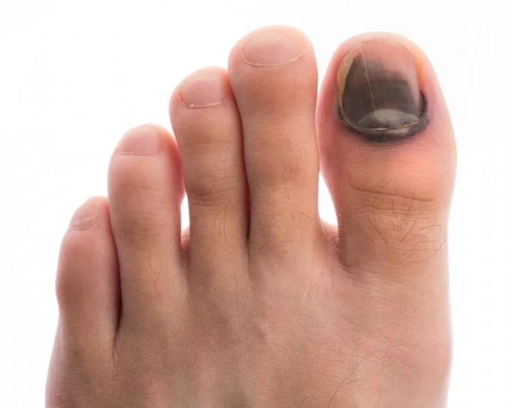 Лечение и профилактика трещин на ногте большого пальца ноги