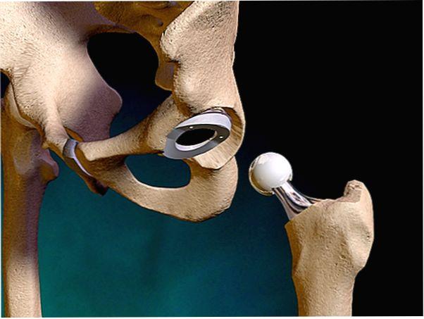 смещение эндопротеза в суставах