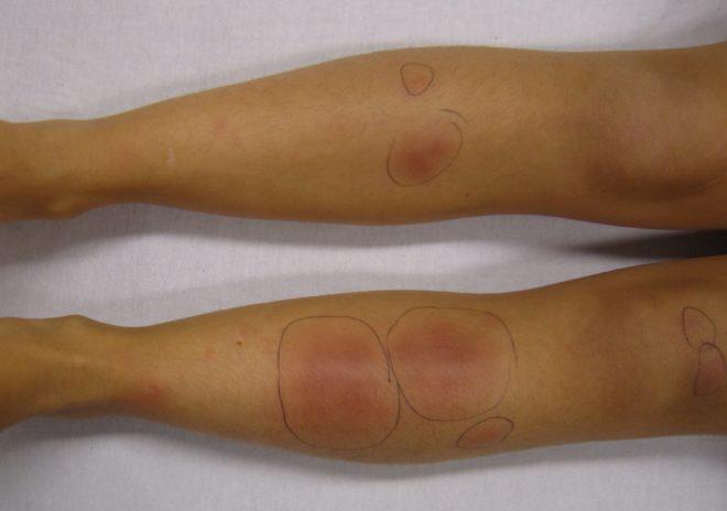 Лечение различных видов дерматита на ногах