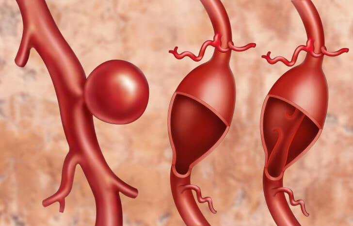 Симтомы и лечение аневризмы артерий нижних конечностей