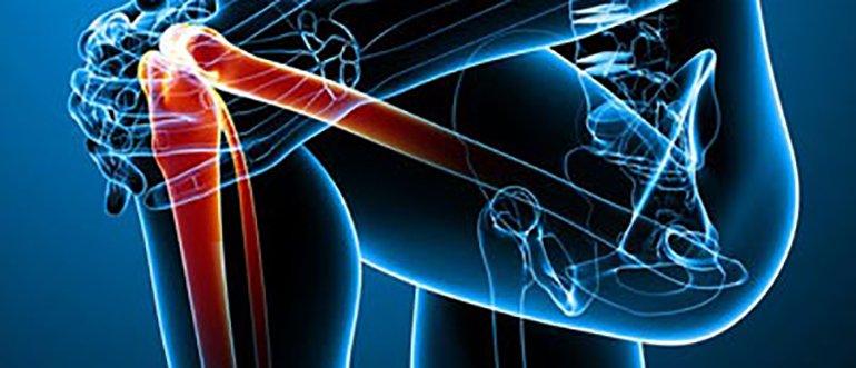 Изображение - Защемление нерва в коленном суставе 0-171