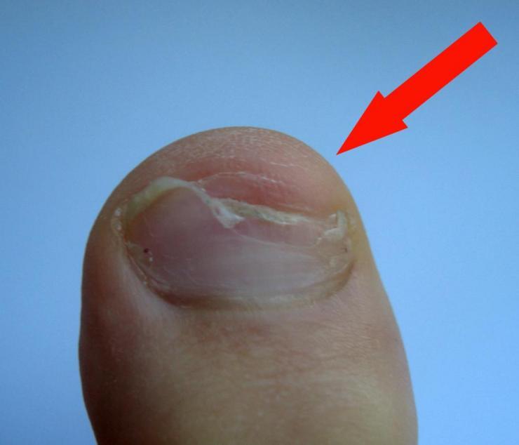 Как лечить слоящиеся ногти на ногах у ребенка?