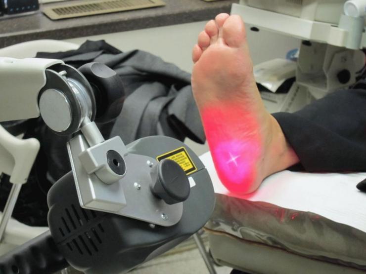 Лечение пяточной шпоры йодом