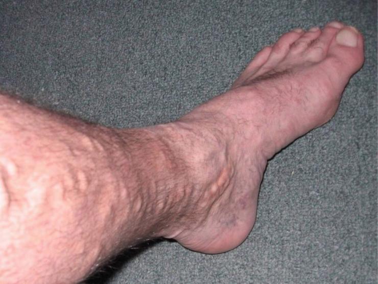 Как избавиться от шишек на венах ног?