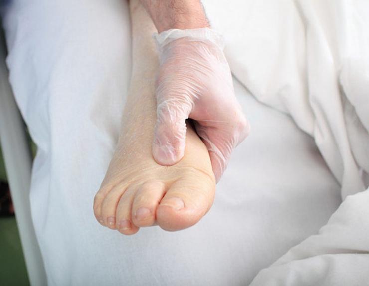 К какому врачу обратиться при грибке ногтей ног?