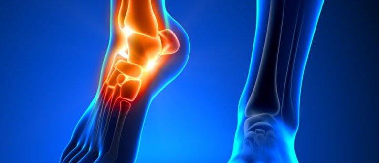 Изображение - Лечебная гимнастика для голеностопных суставов 42-3-768x704