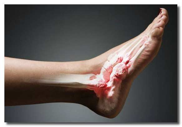Причины и лечение хондросаркомы тазобедренной кости