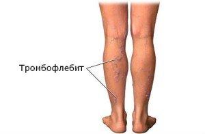 Строение и заболевания подвздошной вены