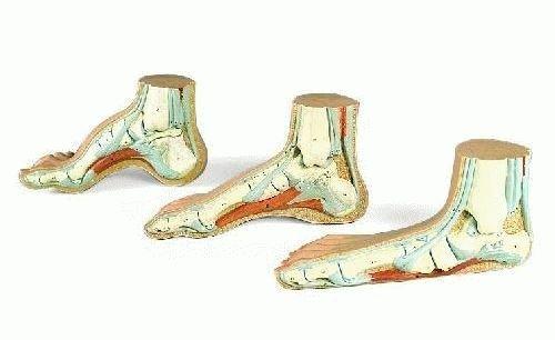 Диагностика и лечение полой стопы