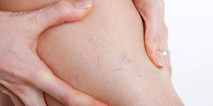 Причины онемения ног при беременности