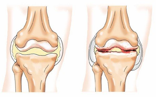 Лечение и профилактика искривления ног у ребенка
