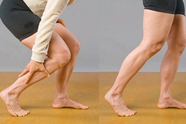 Изображение - Болят суставы у беременной что делать ateroskleroz-v-bryushnom-otdele-aorty-nemoe-smertelnoe-zabolevanie-5