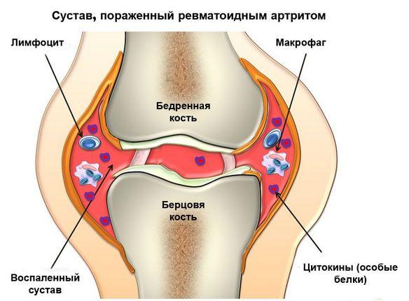 Причины боли в коленном суставе различного характера