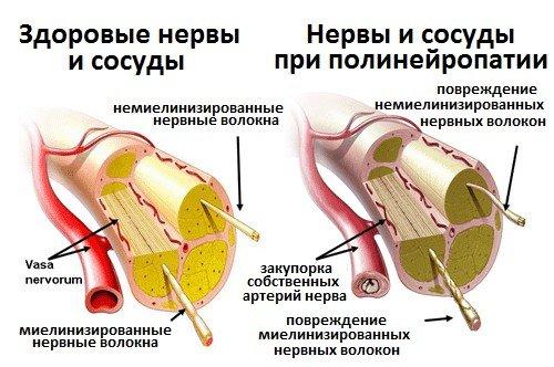 Диагностика и лечение диабетической полинейропатии