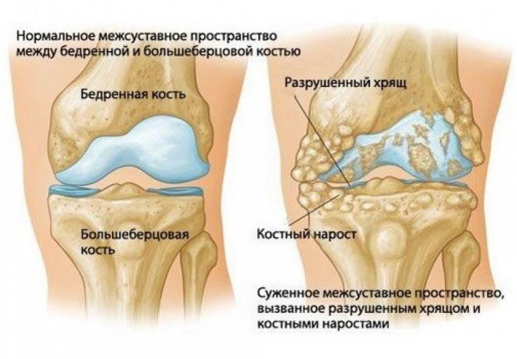 Лечение артрита и артроза коленного сустава