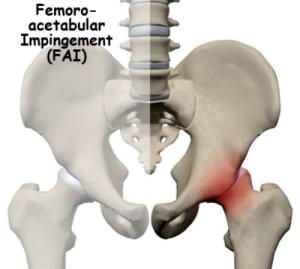 Феморо-ацетабулярный импинджмент суставов