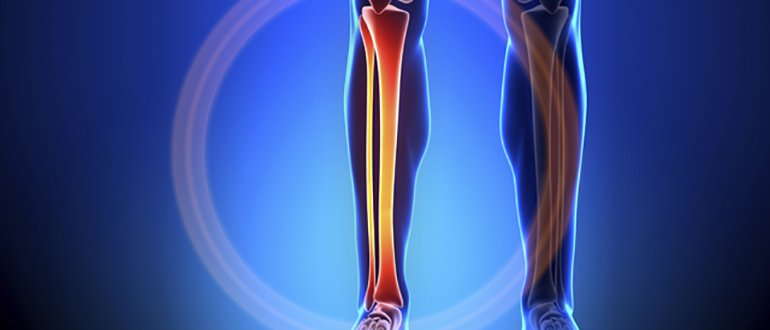 Изображение - Контузия костного мозга коленного сустава knochenhautentzuendung-schmerzende-schienbeine-treten-haeufig-nach-dem-lauftraining-auf-