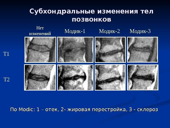 Изображение - Ушиб костного мозга коленного сустава low_back_pain_2010_no_neck_28