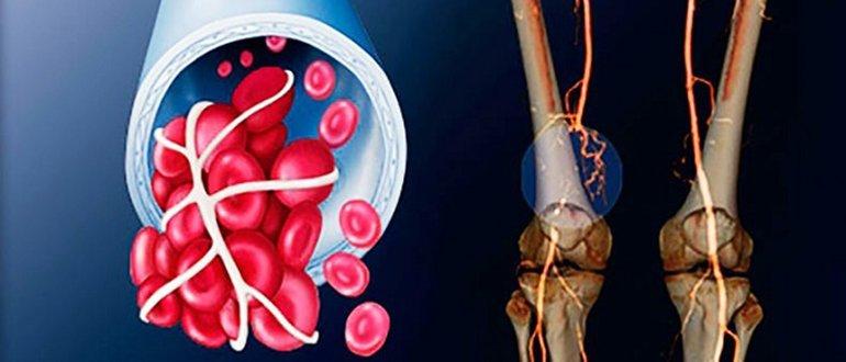 Окклюзия сосудов нижних конечностей лечение
