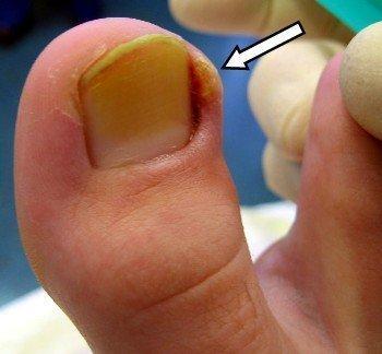 Симптомы и лечение панариция большого пальца ноги