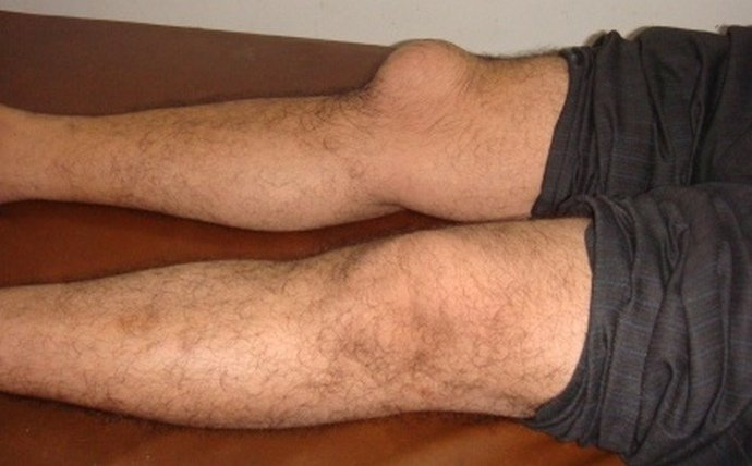 Изображение - Ушиб костного мозга коленного сустава pic-302162
