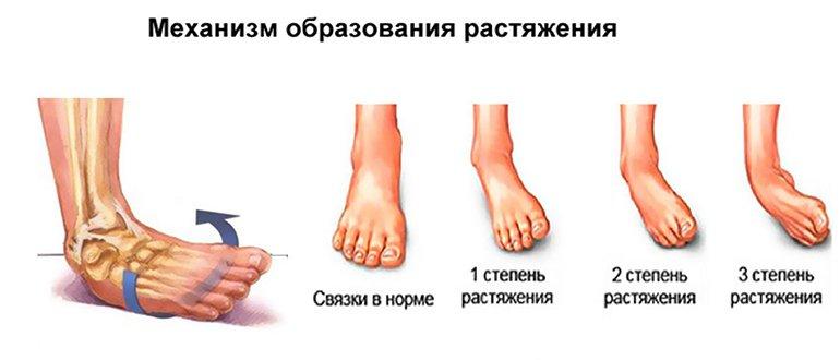 Лечение разорванных связок на ноге