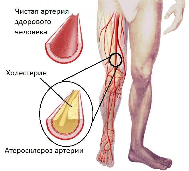 Показания и методы проведения УЗИ и УЗДГ сосудов ног