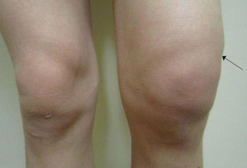 Изображение - Ушиб костного мозга коленного сустава priznakiperelomakosteyabsolyutniesimptom_27722920