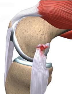 Что делать при разрыве связок на ноге?