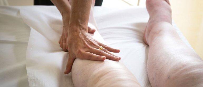 Лимфедема нижних конечностей симптомы и лечение фото