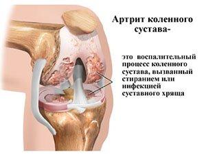 Лечение детского артрита коленного сустава