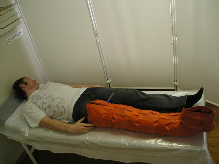Как оказать первую помощь при переломе бедра?