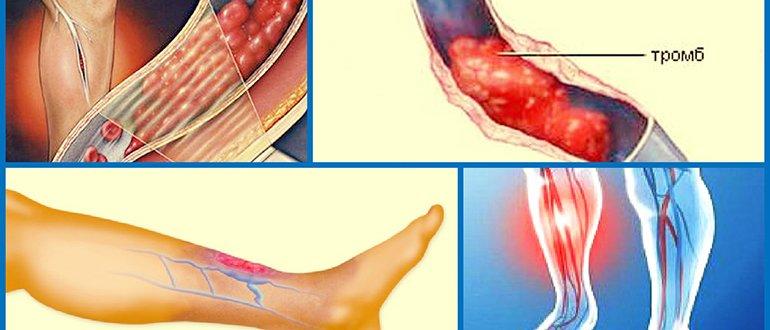 Тромбоз подвздошной вены лечение