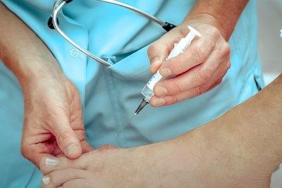 """Виды операции по удалению """"косточки"""" на ноге"""