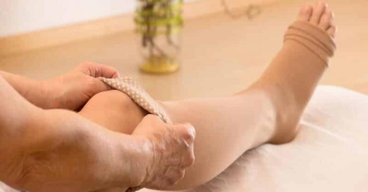 Как избавиться от послеродовых отеков ног