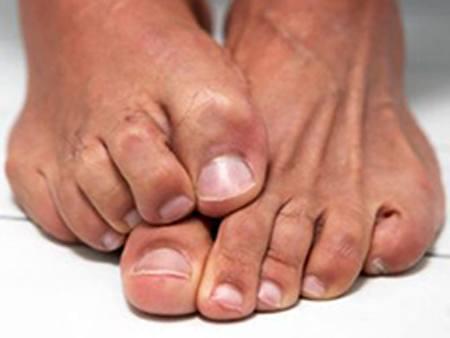 Причины и лечение зуда стопы