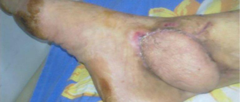 Посттравматический артрит после перелома плюсневых костей