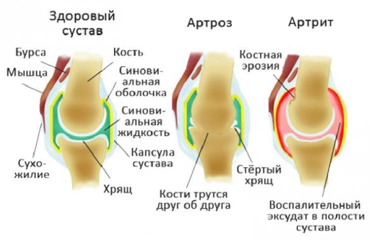 Составление рациона при артрите коленного сустава