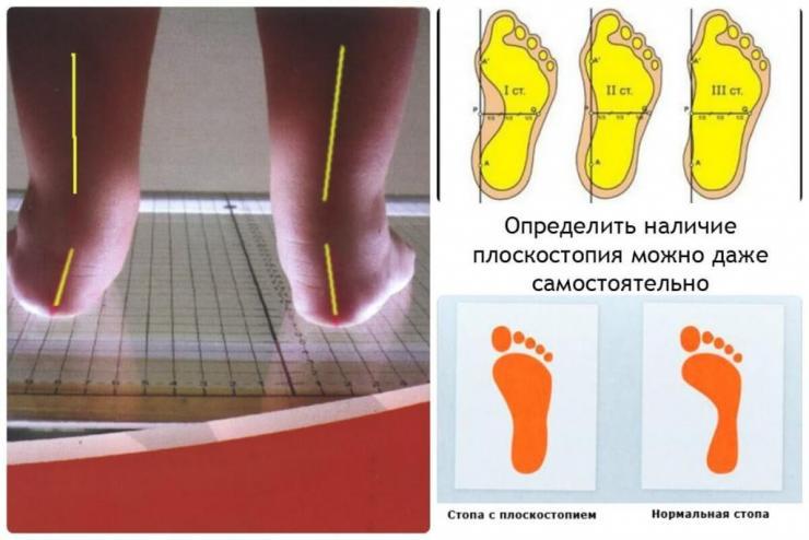 Лечение эквиноварусной деформации стоп